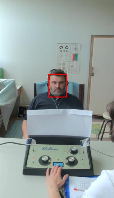 Varpos galvutės, apyvarpės uždegimas (Balanopostitas) - simptomai, požymiai, gydymas | Homosanus